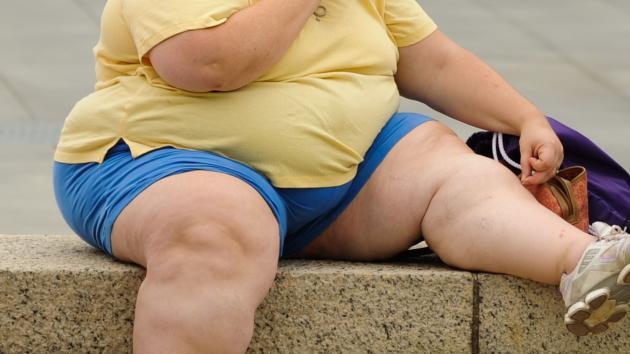 obesidad ok