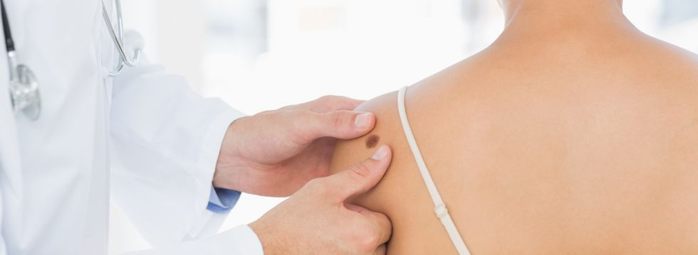 Doctor examining melanoma on woman