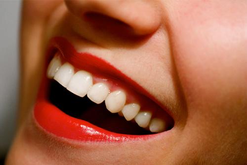 dentadura dientes risa