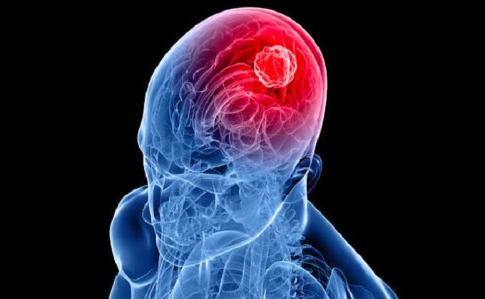 células-tumorales-glioblastoma