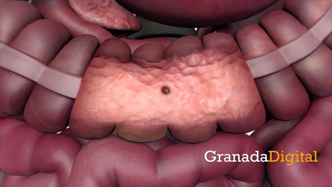 Datos-cáncer-de-colon-rectal-en-Granada