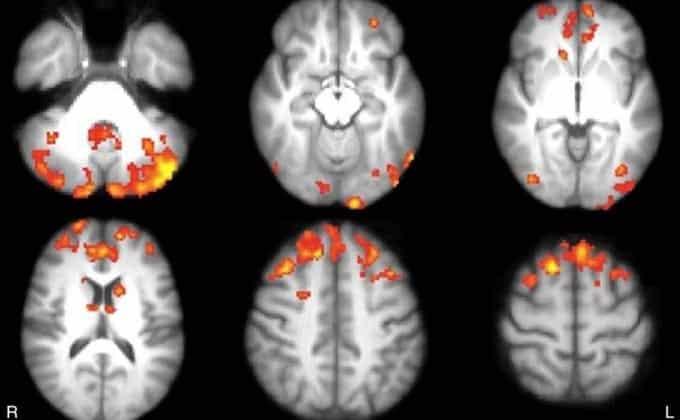 esclerosis-daños