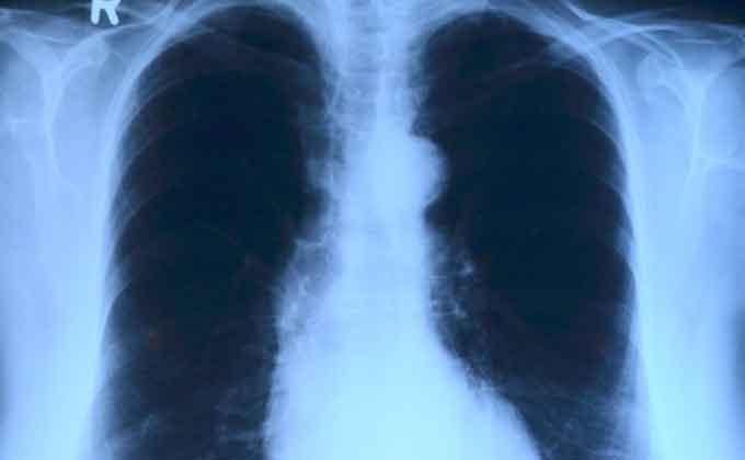 pulmones-radiografia-tumor-de-pulmon