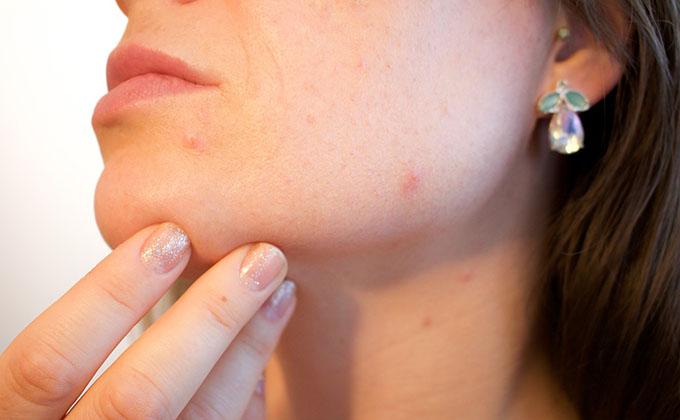 acne-grano-espinilla