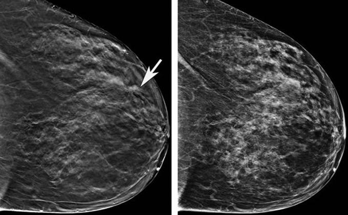 mamografia 3D