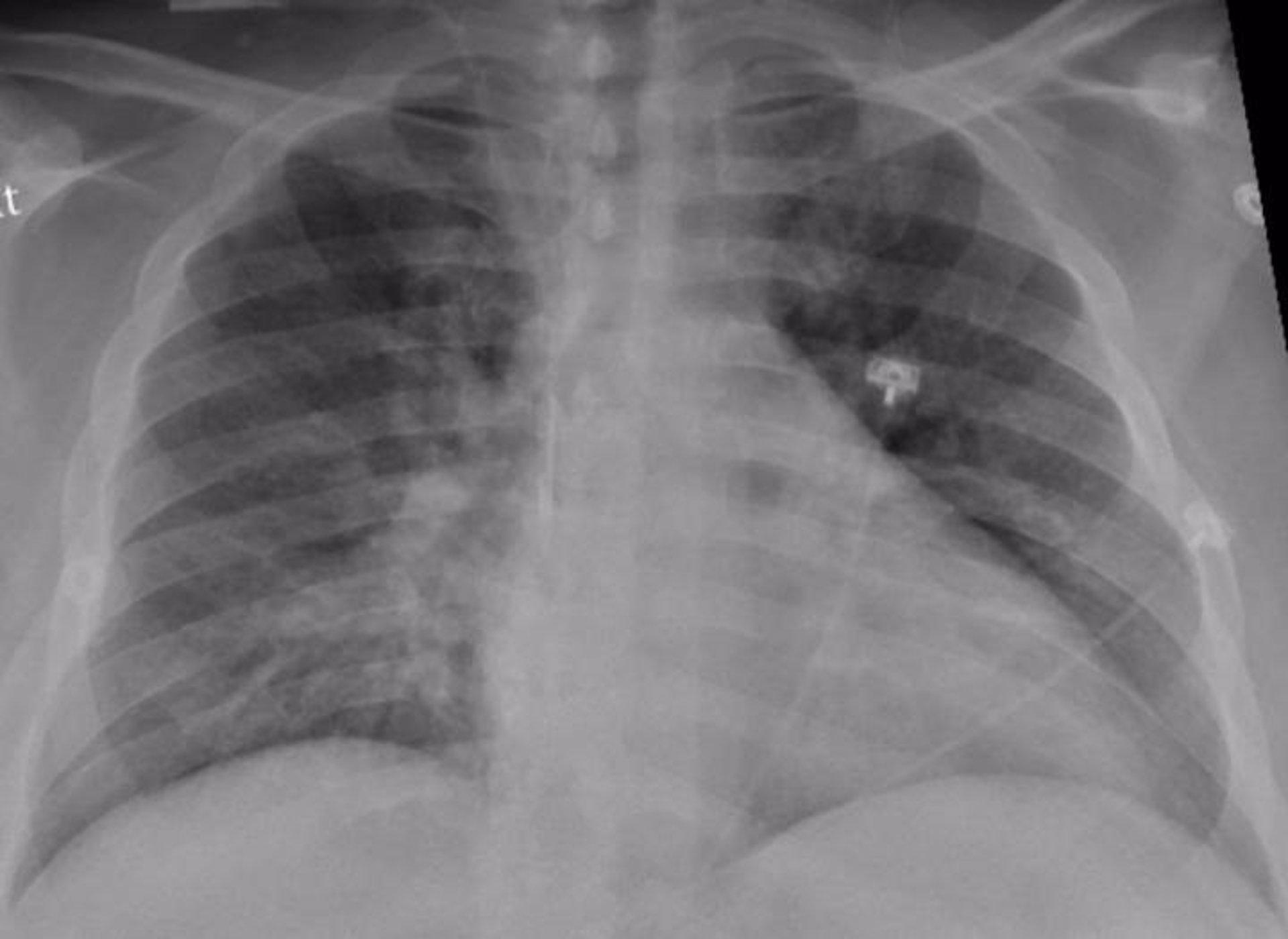 Cvirus.- La mayoría de los pulmones se recuperan bien tres meses después del pasar el COVID-19 con gravedad