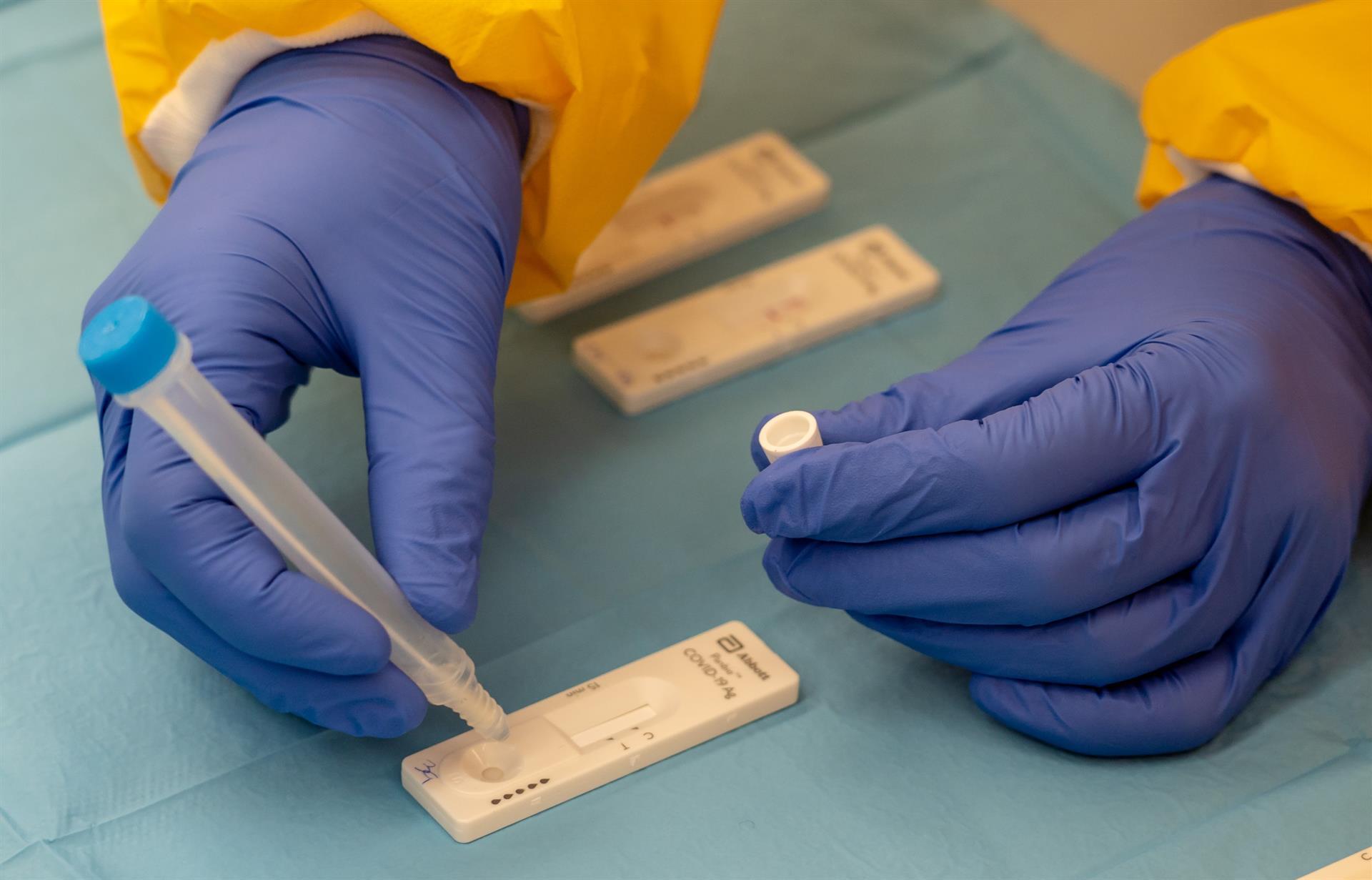 pruebas coronavirus pcr covid